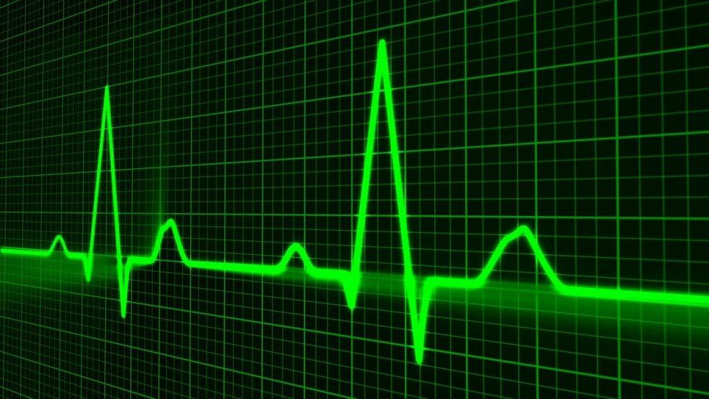 Irregular Heartbeat - My Geek Score