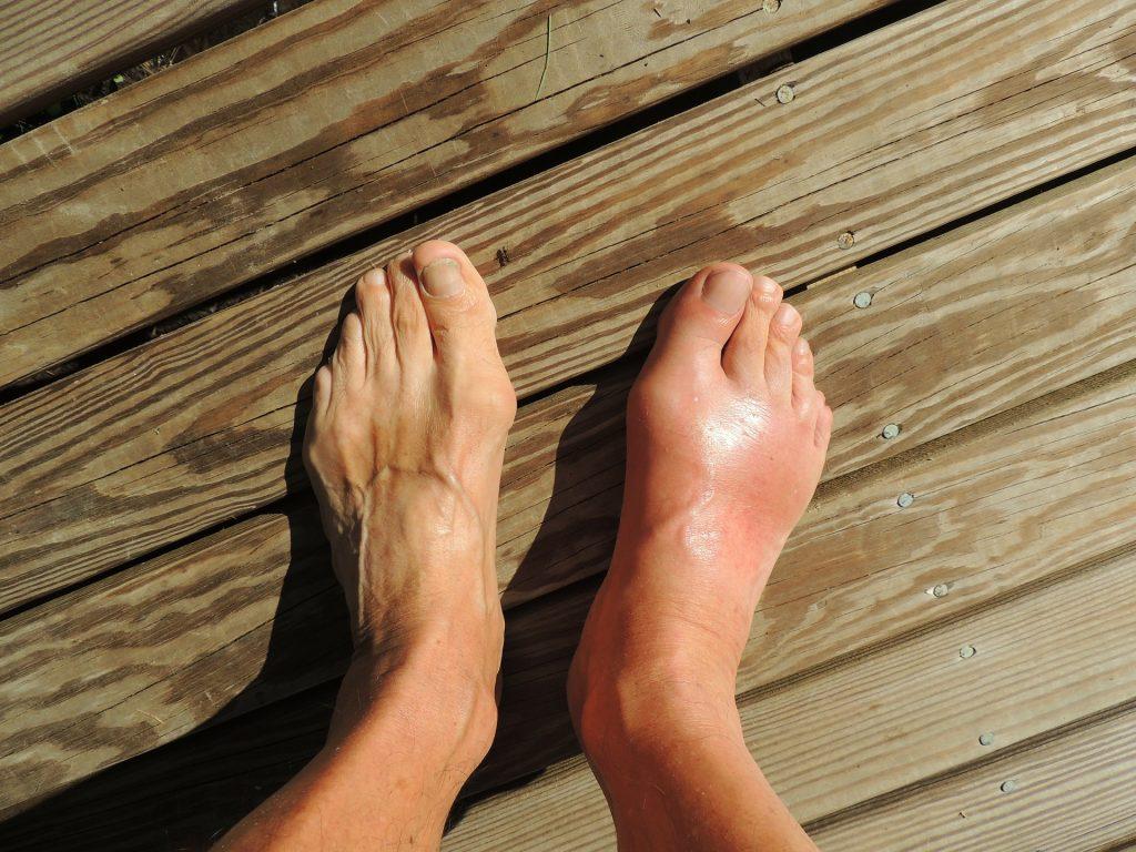 Swollen Ankles - My Geek Score